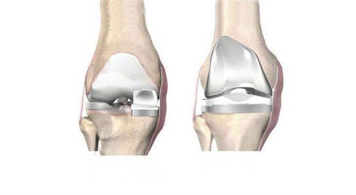 Knee-replacement.ARSH_.Wikimedia-Commons.Pkrvstotalknee