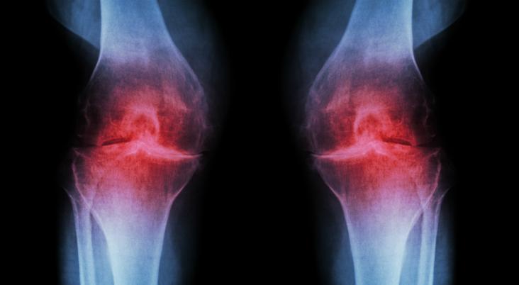 causes-of-knee-pain.ARSH_.iStock.PAID_