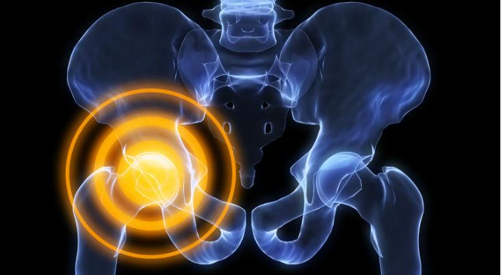 muscle-and-joint-pain-hip-bone-pain-hip-pain-treatment-Arkansas.-Arkansas-Surgical-Hospital