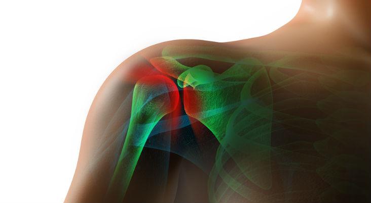 rotator-cuff-surgery-recovery-tips-sports-medicine-doctor-Arkansas.-Arkansas-Surgical-Hospital