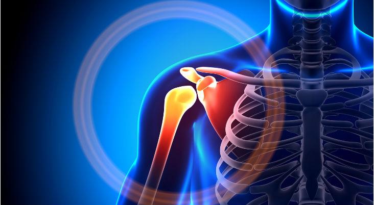 sore-shoulder-muscles-shoulder-pain-treatment-Arkansas.-Arkansas-Surgical-Hospital