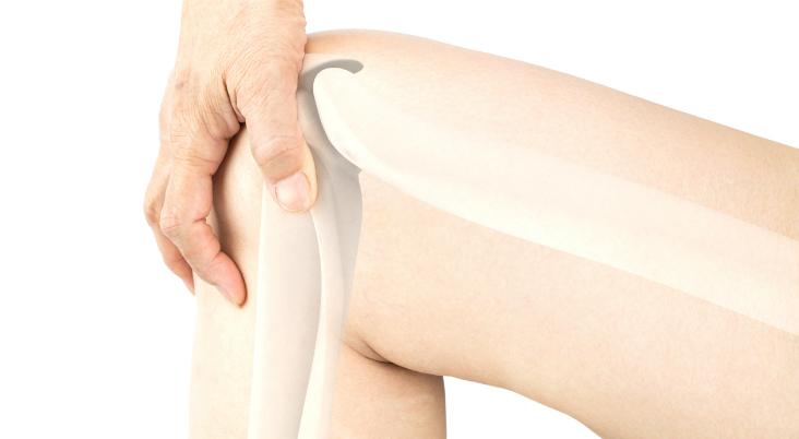 treatment-for-knee-bursitis-pain-in-Arkansas