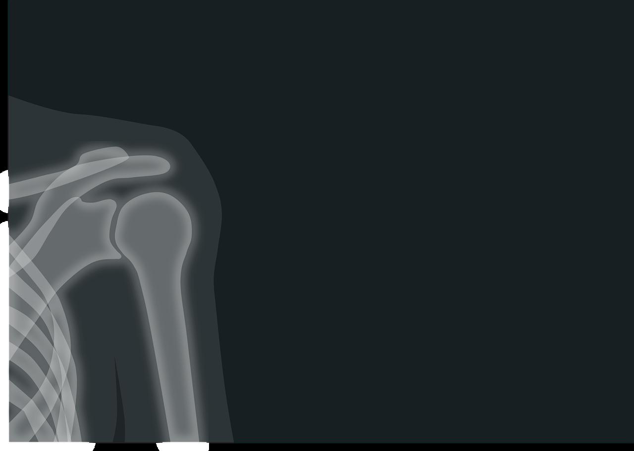 x-ray-1884888_1280